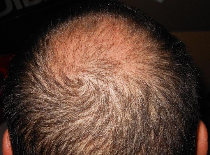 Check up 3 week after the hair transplant.