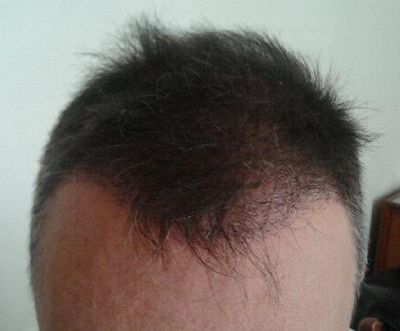 3-week check up after hair replacement surgery at HairPalace.