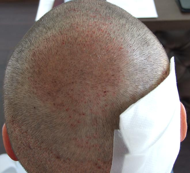 Patient after hair transplant surgery.