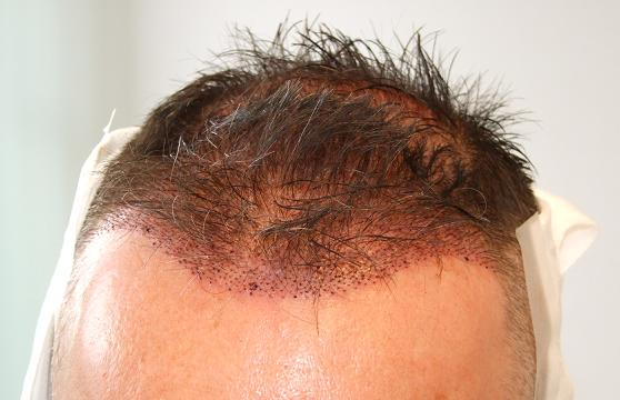 Head after hair replacement surgery.