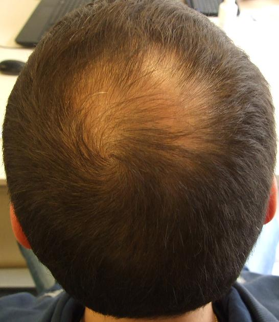 before hair restoration surgery