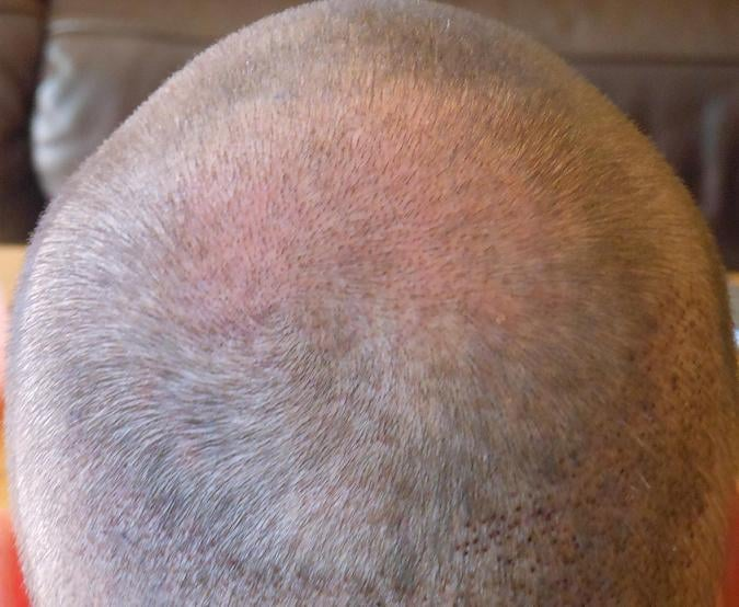 First check up after 1 week. Hair transplant surgery.