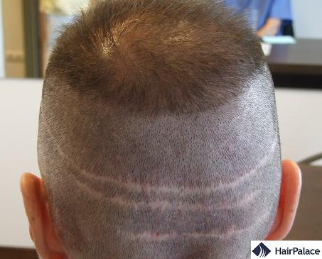 FUT scars on patient's head.