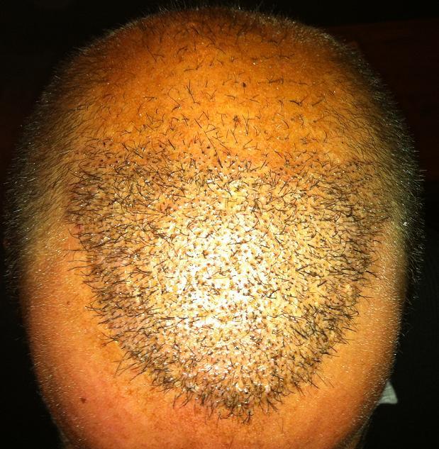 1 week after hair surgery.