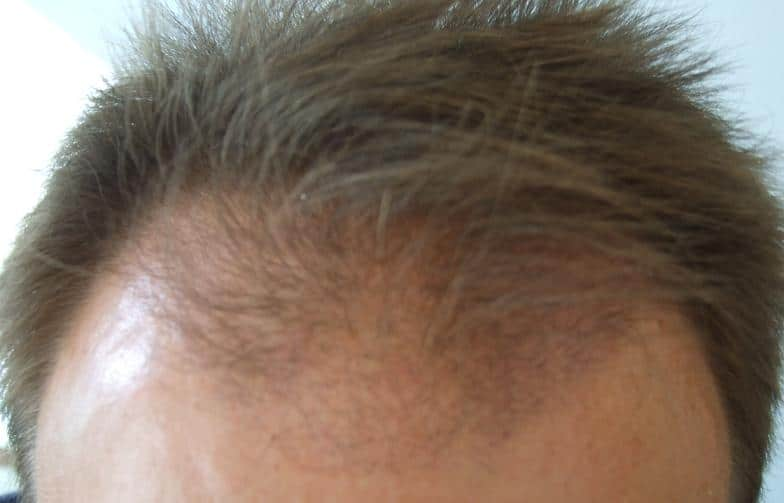3-month result of a hair restoration surgery.