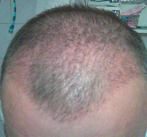 3-month result of the hair transplant surgery at HairPalace.