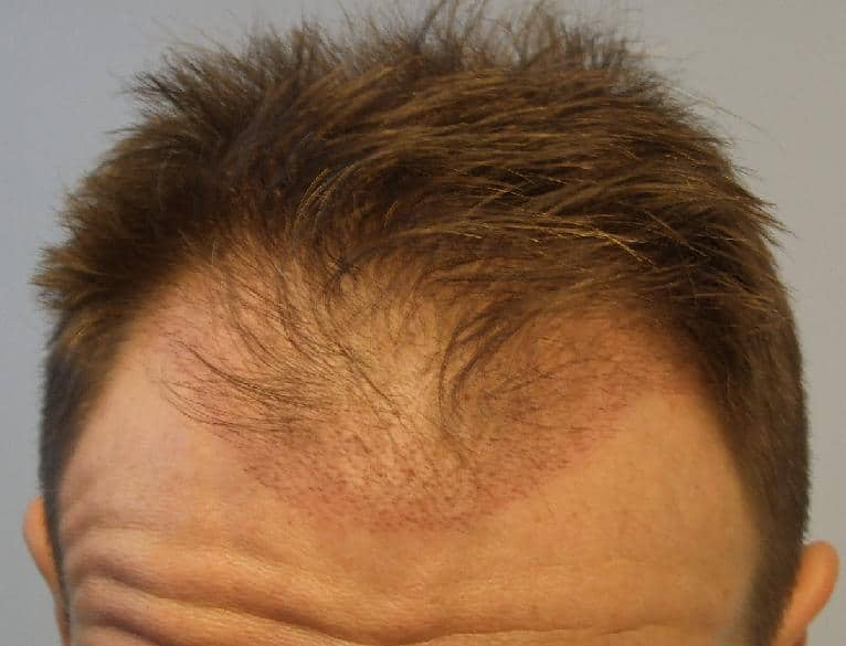 3 week hair transplant check up