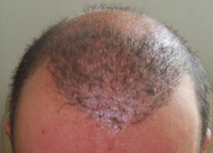 3 week result after hair transplant surgery.