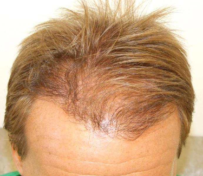 Hair restoration result 7 months after the surgery.