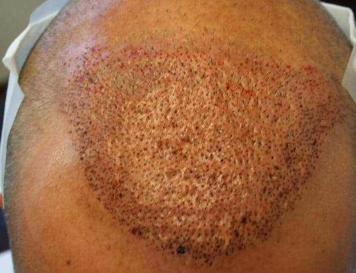 Patient's head after a hair restoration surgery.
