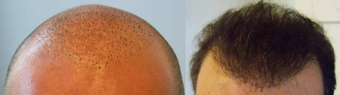 before after fue hair transplant surgery