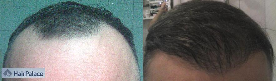 Before after photo of a hair transplant to see the result.