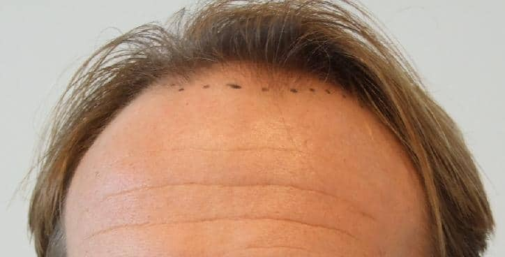 Patient's head before hair transplant surgery.