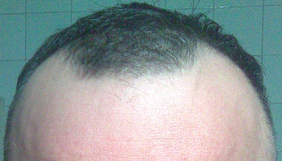 Patient before hair transplant surgery.