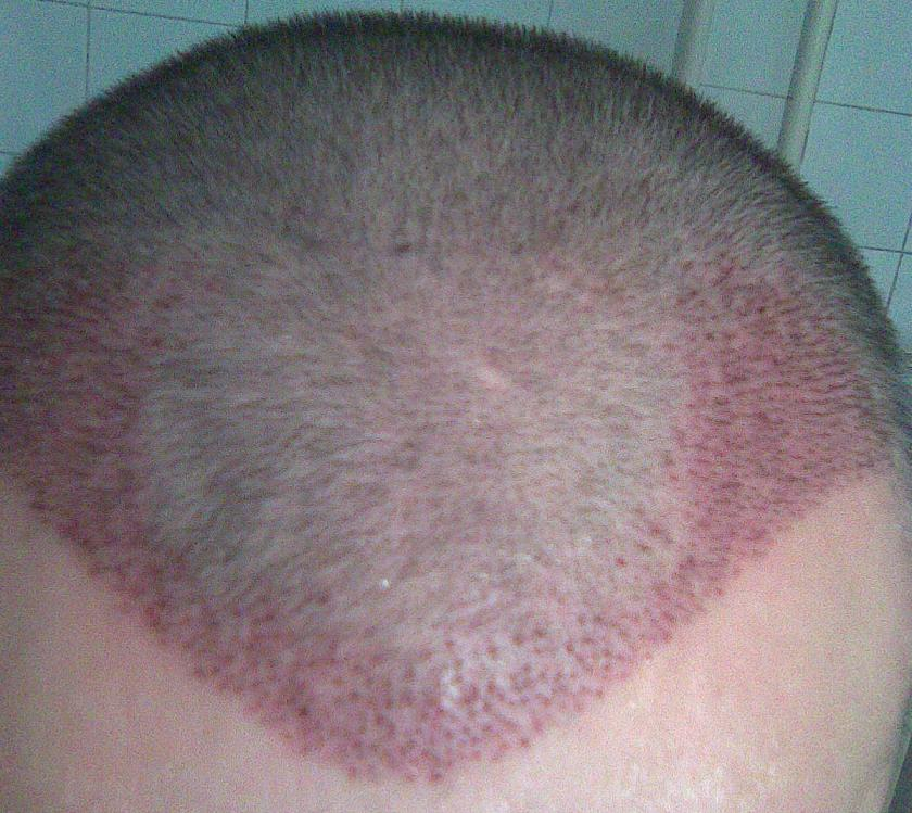First week check-up after hair transplant.