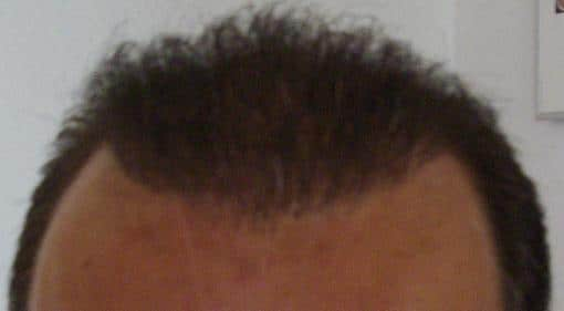 hair transplant result 1 year