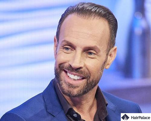 Jason Gardiner hair transplantation