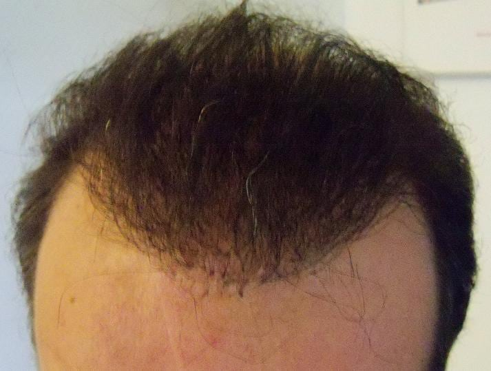 6-month result after a hair restoration surgery.