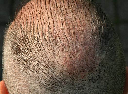 Head 1 week after a hair restoration.