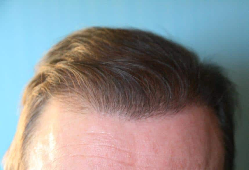 Result 6 months after a hair restoration surgery.