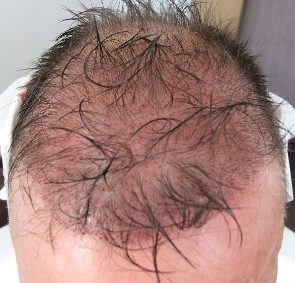Head after hair transplant surgery.