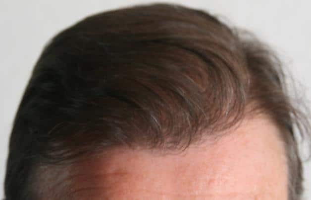 result fue safe hair transplant hairpalace