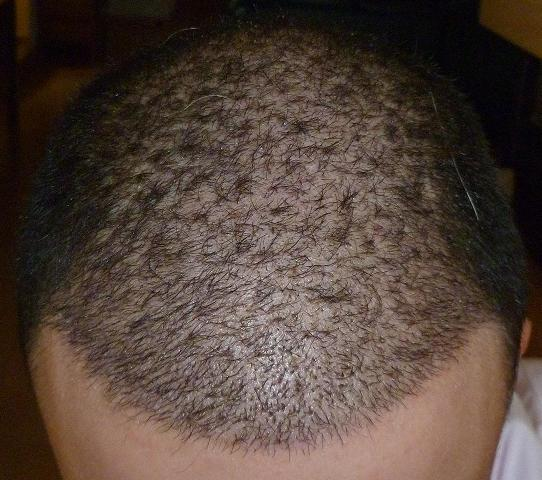3 week result after hair surgery.