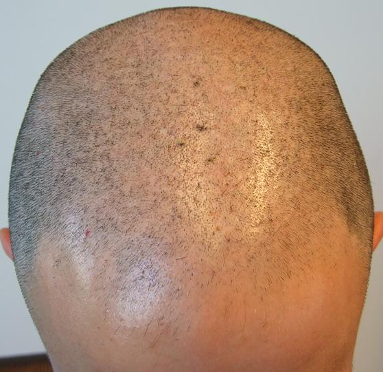 Patient's head before a FUE hair transplant.