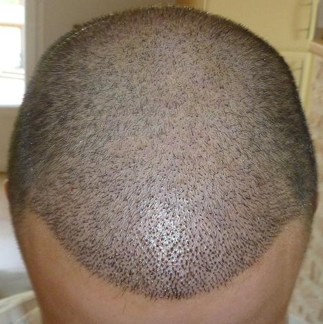 1 week after the hair transplant surgery.