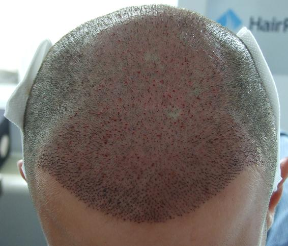 Photo taken after a hair restoration surgery.