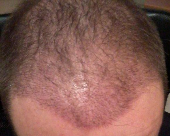 2-week result of a hair transplant.