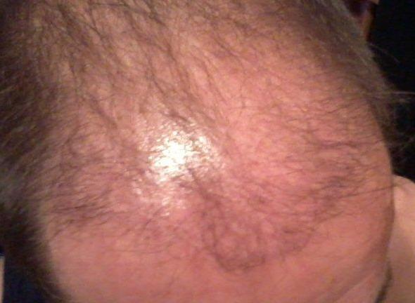 Result 3 months following the hair restoration surgery.