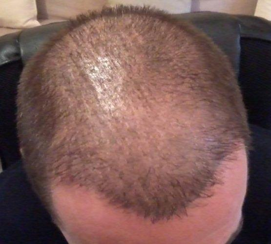 6 month result after a hair transplant.