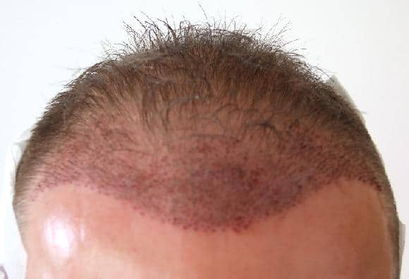 Zone frontal right after the hair transplant.