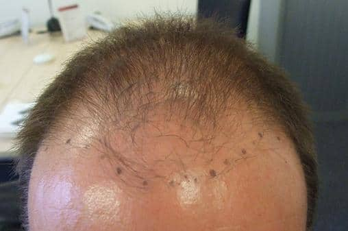 Patient before hair transplant.