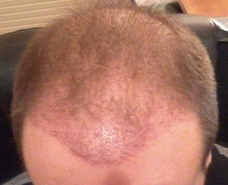 Photo made 3 weeks after the hair transplant.