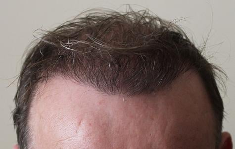 Result 6 month after hair transplant surgery.