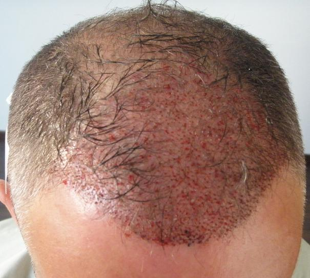 Patient's head after the hair transplant in Hungary.