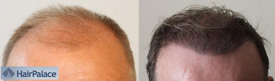 Before and after photo of the result of a hair transplant in Budapest.