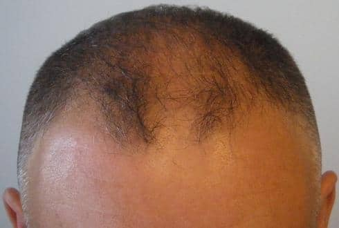Patient's head before the hair restoration surgery.