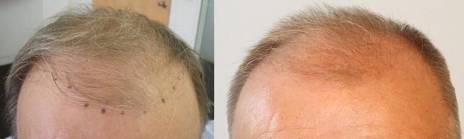 Ayant des cheveux blonds et peu blancs, notre patients voulait un devis très précis. Aujourd'hui il peut être sûr que la méthode FUE Safe peut aider aux patients qui ont des cheveux moins forts ! Il nous a contacté en pensant qu'il n'a pas besoin de beaucoup de cheveux, mais pour atteindre une bonne densité, nous lui avons proposé 4400 cheveux qu'il a finalement accepté. Ces deux photos ont été prises avant l'opération, sur la première vous voyez la nouvelle ligne frontale – selon ses souhaits. L'autre a été faite après la coupe de cheveux qui facilite le travail du médecin.