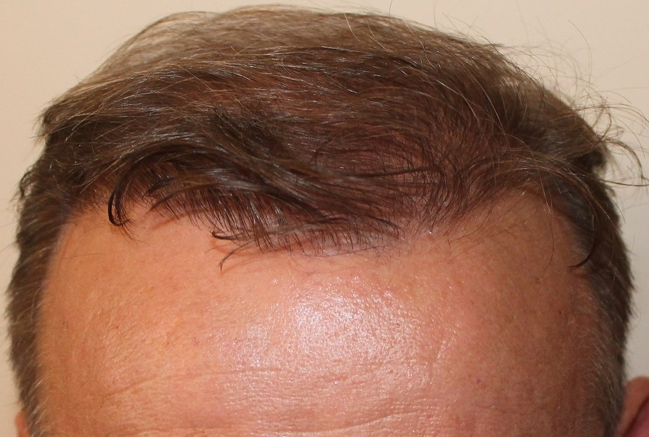 result hair transplant fue hairpalace after 1 year