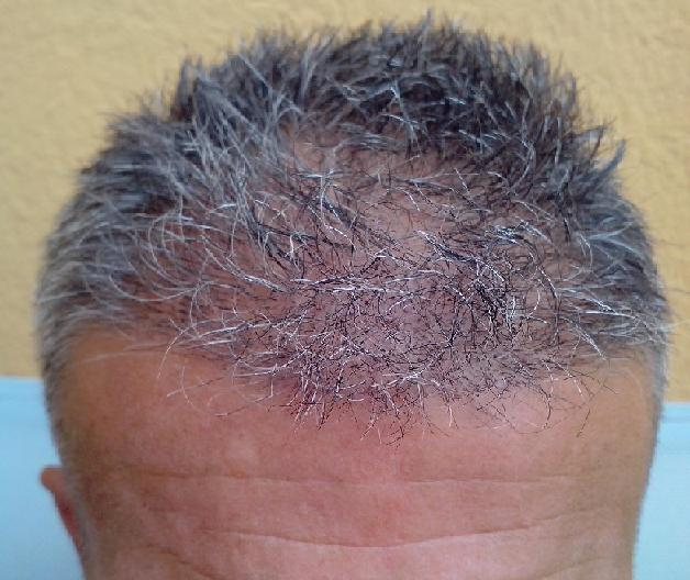 Patient 1 week after the hair transplantation.