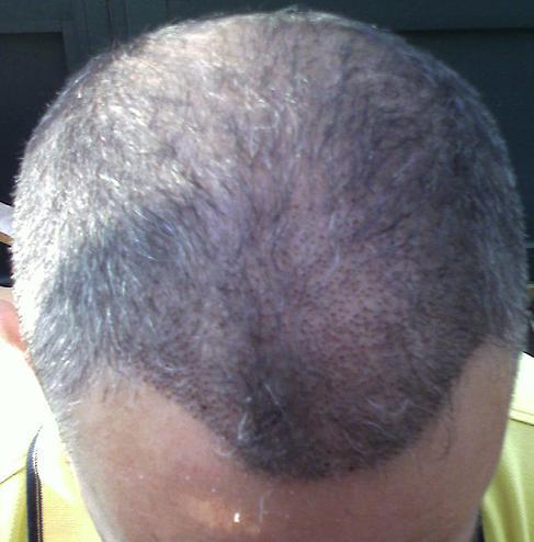 1 week result of hair transplant FUE.