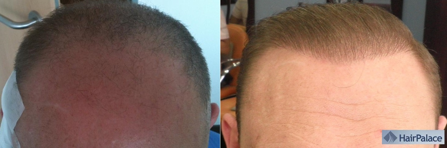 1-year result fue hair transplant hairpalace before after