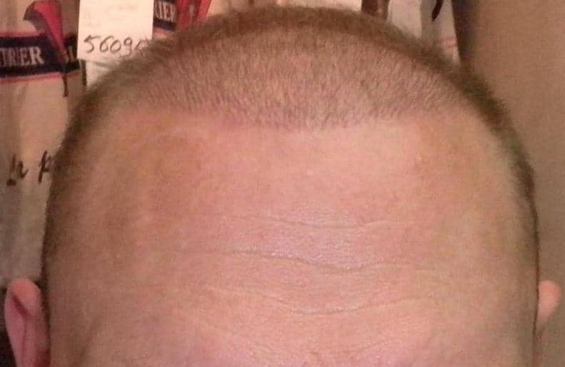 1 week following hair restoration