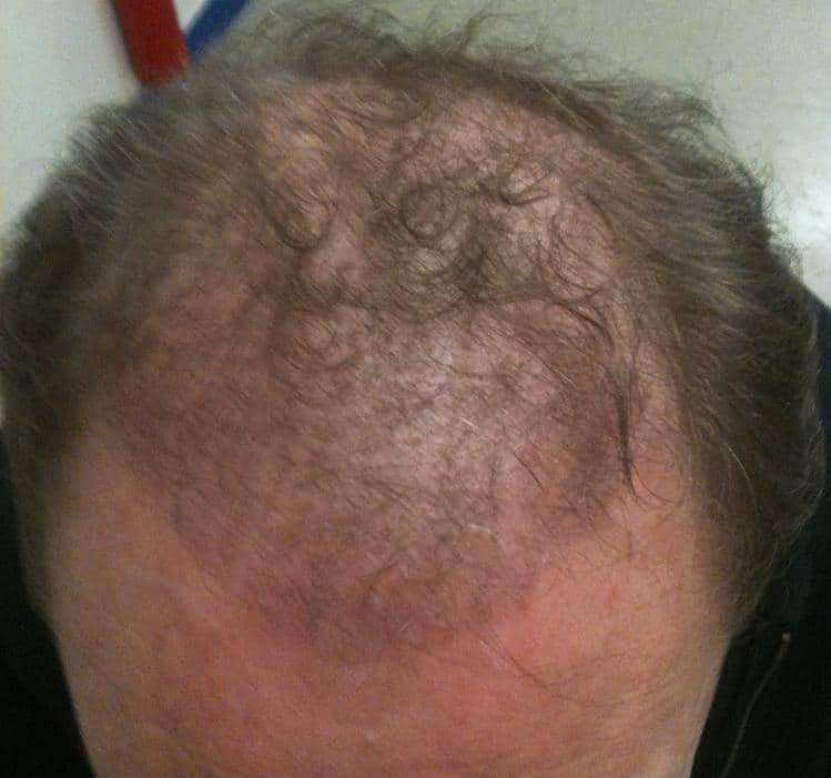3 month result hair restoration