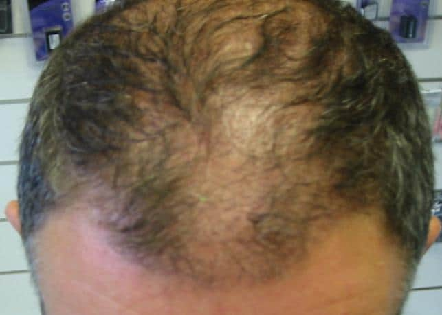 3 month result hair surgery