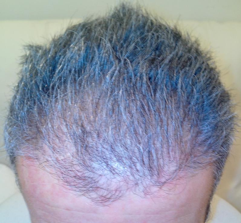 3 months after hair restoration FUE