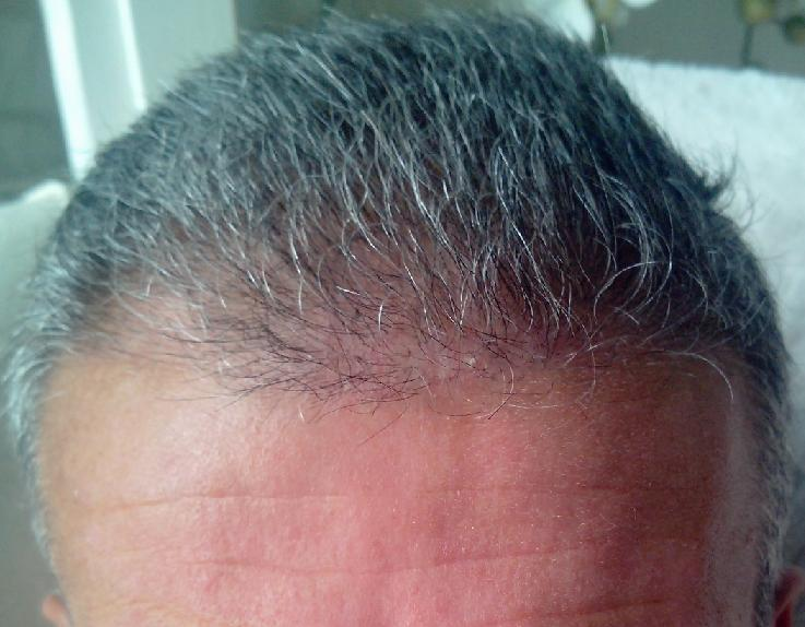 3 weeks after the hair transplant.